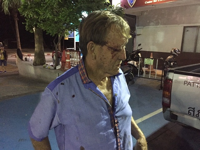 'Unprovoked' Attack on Aussie Tourist in Pattaya